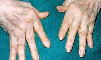 В исследовании фазы IIа новейший лекарственный препарат ABBV-3373, конъгированное моноклональное антитело демонстрирует положительное влияние на активность заболевания у пациентов с ревматоидным артритом